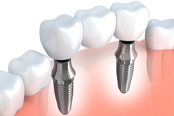 Implant Supported Bridges illustration