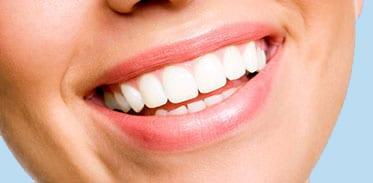 Close up of Beautiful Smile Image