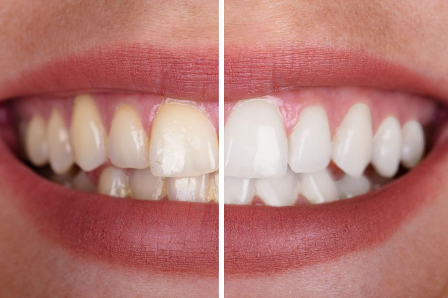 split photo of woman's smile - before and after whitening